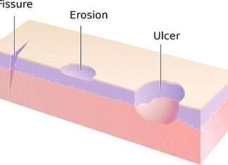 Lésions élémentaires et démarche diagnostique en dermatologie